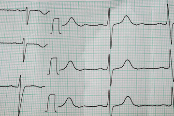 Cardiogram. Cardiogram on special paper for cardiograph.