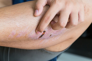 Finger scratching itchy knee with healing injury from abrasion