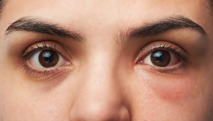 allergy reaction on eye