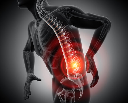 Akuter Rückenschmerz