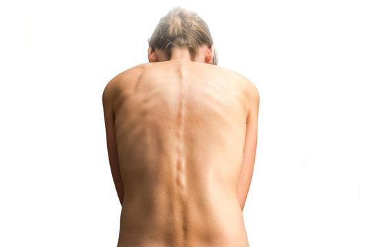 Nackte Frau mit Skoliose als Diagnose für Rückenschmerzen
