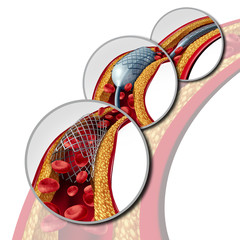 Stent Coronary Medical Concept