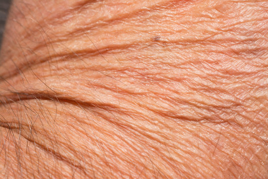 Texture of the skin with wrinkles on the body of mature male