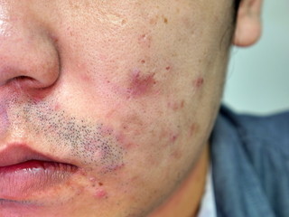 Man with skin and scars from acne close up