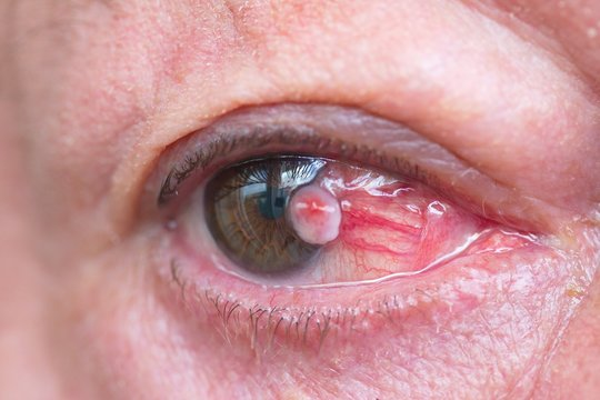 Close up of the conjunctival squamous cell carcinoma.