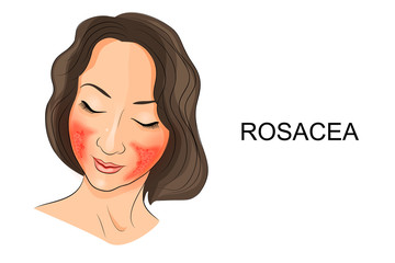 rosacea on the girl's face. Dermatology