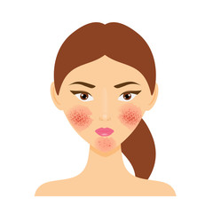 Woman with rosacea skin problem. Vector illustration