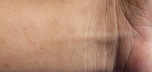 Human skin macro texture