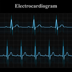 Normal and tachycardial ecg charts