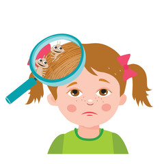 Girl With Lice. Magnifying Glass Close Up Of A Head. Vector Illustration: Dirty Head, Dirty Hair, Infection. Child With Lice. Mud Girl. Hygiene Promotion.