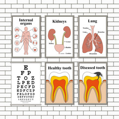 Illustration of medical pictures on a wall