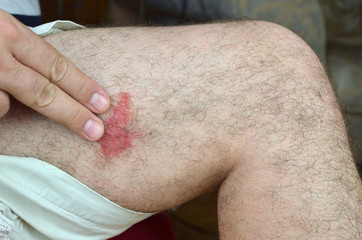 Applying anti insect bite gel on skin of a leg in the place of irritation because of an unknown insect bite