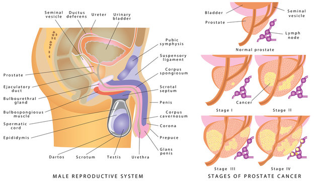 Male Genitourinary System. Anatomy of the male reproductive system. Stages of prostate cancer on a white background
