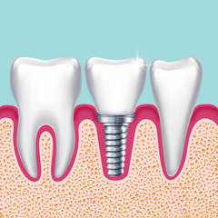 Human teeth and dental implant in jaw orthodontist medical vector illustration