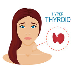 Woman with hyperthyroid gland. Hyperthyroidism symbol. Enlarged thyroid diagram sign. Patient with a goiter. Medical concept. Anatomy of people. Vector illustration.