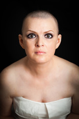 woman oncology disease on a dark background with no hair