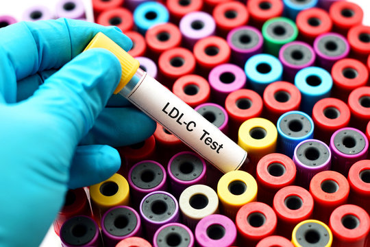 Blood sample for LDL-Cholesterol (LDL-C) test