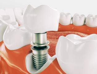 Dental implant - Series 2 of 3 - 3d rendering