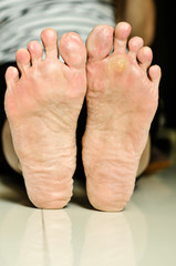 wart under foot can treatment by salicylic acid.
