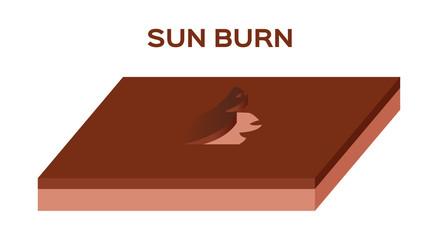 sun burn vector , skin