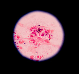 Gram stain showing blue cells gram positive in single,in pair,in