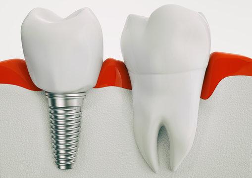 Anatomy of healthy teeth and dental implant in jaw bone - 3d rendering