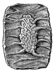 Section of a Portion of the Small Intestine showing a Peyer's Pa