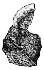 Intussusception of the Intestine, vintage engraving