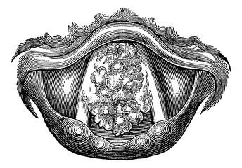 Myxoma of the Larynx, vintage engraving