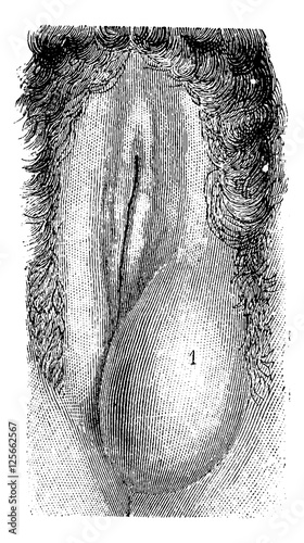 Abscess Of The Labia Majora Vintage Engraving Stock Image And