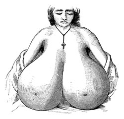 Enlarged breasts, vintage engraving.