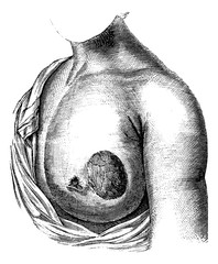 Medullary breast cancer, vintage engraving.