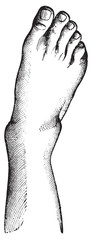 Fibula fracture with A highly charged, and a projection of the f