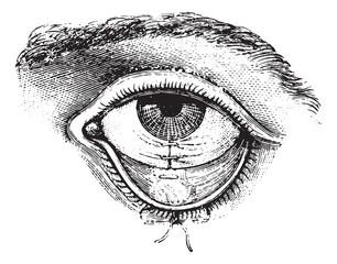 Operation of Symblepharon, vintage engraving.