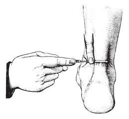 Tenotomy of the Achilles tendon, vintage engraving.