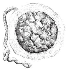 Placenta (external or uterine side), vintage engraving.