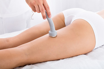 Woman Getting Microdermabrasion Therapy On Her Legs
