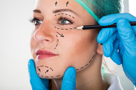 Surgeon Drawing Lines On Woman's Face For Plastic Surgery