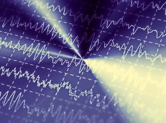 brain wave on electroencephalogram, EEG for epilepsy, illustration