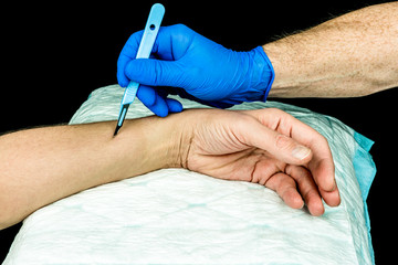 Hand with blue medical glove holding a scalpel to make an incision on an arm. Close up with black background.