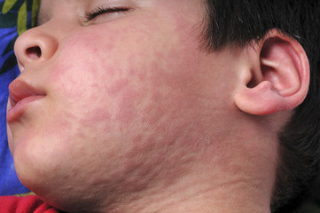 Urticaria Face Close up