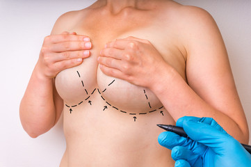 Dotted lines on female body for lifting and breast augmentation