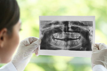 Dentist looking at dental roentgenography