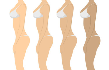 Stages of tanning. Isolated women on white background. Girls with different skin tones in white lingerie.