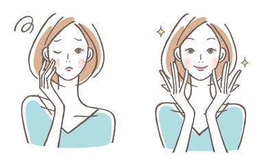 肌の悩み 女性