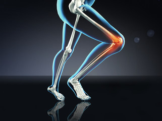 X-ray Woman Running with Knee Pain
