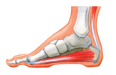 Foot, Scheme of foot with the corn and plantar callosityon a white background