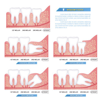 set of impacted wisdom tooth, dental problems, horizontal, mesial, vertical, distal impaction..
