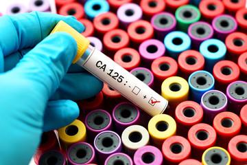 CA 125 positive, ovarian cancer diagnosis