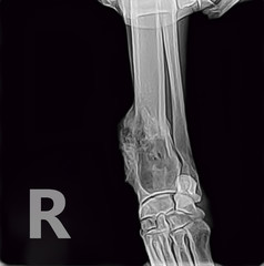 X-ray of osteosarcoma bone tumor foreleg  a dog.